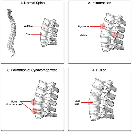 Ankylosing Spondylitis - A Common Cause Of Back Pain