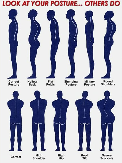 Postural Conditions - spine